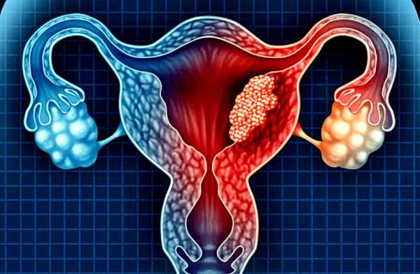 Các bệnh lý liên quan đến tử cung