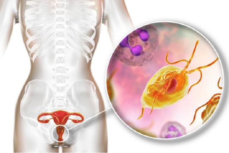 viêm âm đạo do nhiễm khuẩn